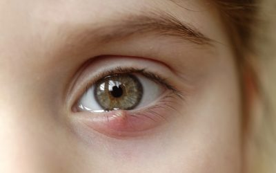 How to get rid of my styes?
